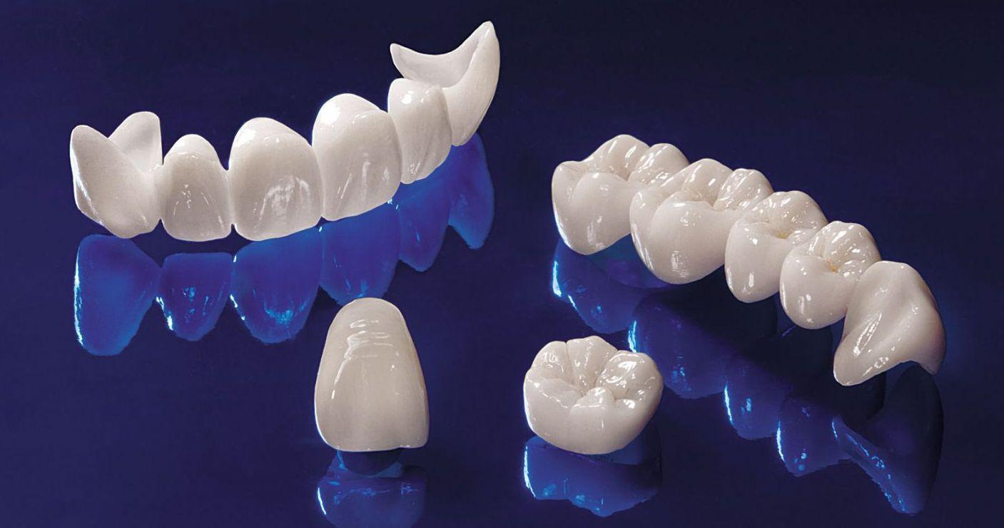Безметалловая керамика – уникальное достижение современной стоматологии
